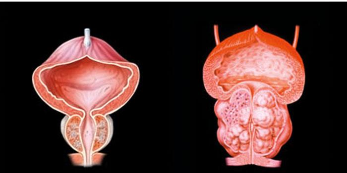 mrt prostata stuttgart